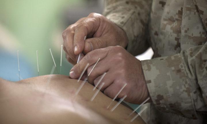 Una revisione sistematica: l'agopuntura in confronto alla terapia farmacologica standard per la profilassi dell'emicrania